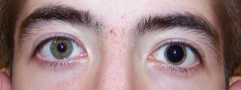 Uneven Eyes